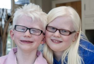 ***EXCLUSIVE***  WOLVERHAMPTON, UNITED KINGDOM - UNDATED: Jessica Needham, 11 and her brother Ben Needham, 7 pose for a photograph near their residencein Wolverhampton, England.    AN AMBITIOUS mum is pushing her albino children to become star actors and Paralympians - vowing never to let them become 'undateables'.Self-confessed pushy-mum Lisa Needham has two albino children, Jessica, 11, and Ben, seven.She and husband James know no relatives with the condition and were shocked when doctors diagnosed their daughter four weeks after leaving hospital.The lively schoolgirl has very poor eye-sight and must wear high-factor sunscreen in the sun but is determined to have a career on stage. Undeterred by the complications, both physical and sociological, the family decided to have another child, knowing that as carriers of the albino gene, they had a one in four chance of having an albino child again. With his bright-white hair and pale skin, it was obvious Ben was also an albino. However, they have made it their mission to ensure both children mix in general society and do not become 'undateables' like Damian, the albino 25-year-old who appeared on the TV documentary of the same name. Ben - whose older brother Matt, 14, was born without albinism - has ambitions to compete at the Paralympics.   PHOTOGRAPH BY Richard Grange / Barcroft Media  UK Office, London. T +44 845 370 2233 W www.barcroftmedia.com  USA Office, New York City. T +1 212 796 2458 W www.barcroftusa.com  Indian Office, Delhi. T +91 11 4053 2429 W www.barcroftindia.com